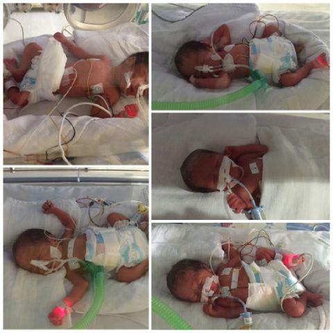 Warga Cirebon Lahirkan Bayi Kembar 5